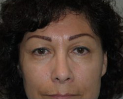 Blepharoplasty Before & After Patient #3745