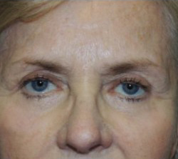 Blepharoplasty Before & After Patient #3778