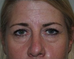 Blepharoplasty Before & After Patient #3786
