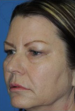 Blepharoplasty Before & After Patient #3751