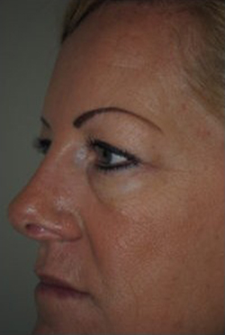 Blepharoplasty Before & After Patient #3791