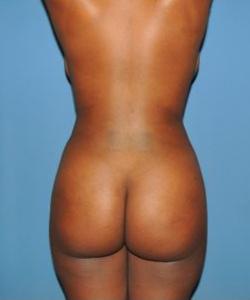 Brazilian Butt Lift Before & After Patient #66