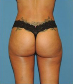 Brazilian Butt Lift Before & After Patient #88