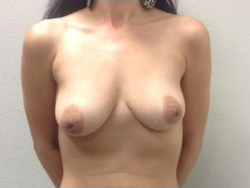 Breast Augmentation Before & After Patient #348