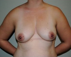 Breast Augmentation Before & After Patient #355