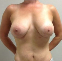 Breast Augmentation Before & After Patient #362