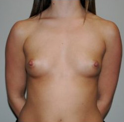 Breast Augmentation Before & After Patient #384