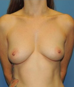 Breast Augmentation Before & After Patient #269