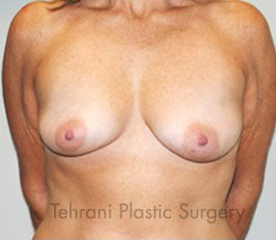 Breast Augmentation Before & After Patient #420