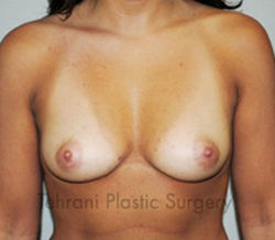 Breast Augmentation Before & After Patient #434