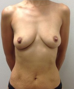 Breast Augmentation Before & After Patient #277