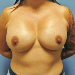 Breast Augmentation Before & After Patient #305