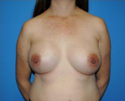 Breast Augmentation Before & After Patient #312