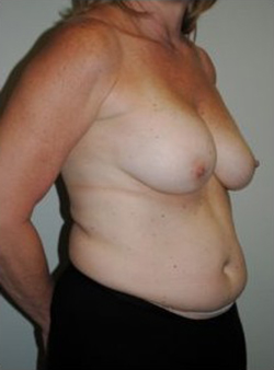 Breast Augmentation Before & After Patient #333
