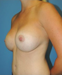 Breast Augmentation Before & After Patient #385
