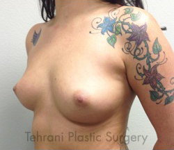 Breast Augmentation Before & After Patient #392