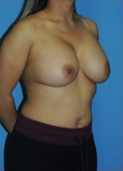 Breast Augmentation Before & After Patient #406