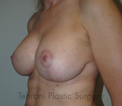 Breast Augmentation Before & After Patient #448