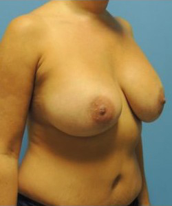 Breast Augmentation Before & After Patient #291