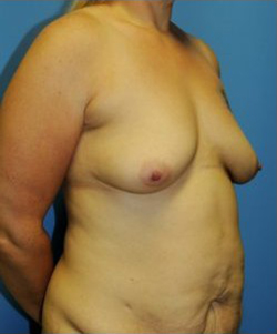 Breast Augmentation Before & After Patient #319