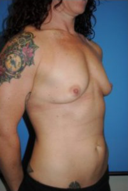 Breast Augmentation Before & After Patient #326