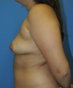 Breast Augmentation Before & After Patient #341