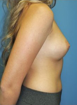 Breast Augmentation Before & After Patient #284