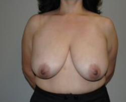 Breast Reconstruction Before & After Patient #455