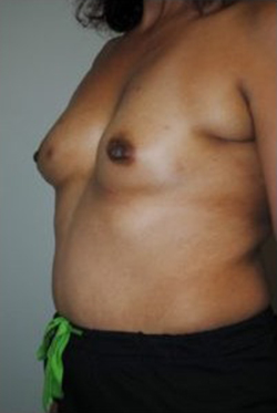 Breast Reconstruction Before & After Patient #465