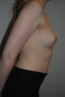 Breast Reconstruction Before & After Patient #458