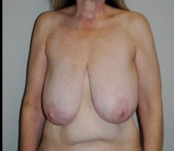 Breast Reduction Before & After Patient #472