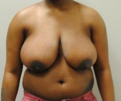Breast Reduction Before & After Patient #479