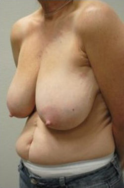 Breast Reduction Before & After Patient #486