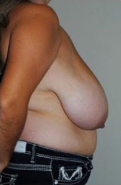 Breast Reduction Before & After Patient #493