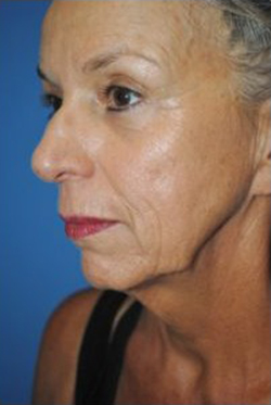 Face Lift and Neck Lift Before & After Patient #3808