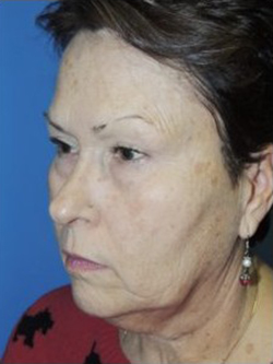 Face Lift and Neck Lift Before & After Patient #3813