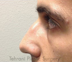 Rhinoplasty Before & After Patient #3818