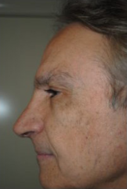 Rhinoplasty Before & After Patient #3821