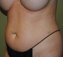 Slim Lipo / Liposuction Before & After Patient #163