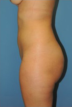 Slim Lipo / Liposuction Before & After Patient #156