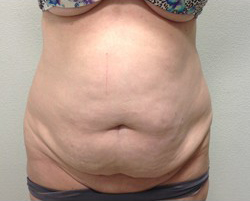 Tummy Tuck Before & After Patient #245