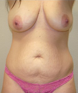 Tummy Tuck Before & After Patient #252