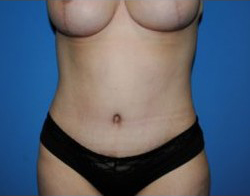 Tummy Tuck Before & After Patient #220