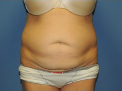 Tummy Tuck Before & After Patient #183