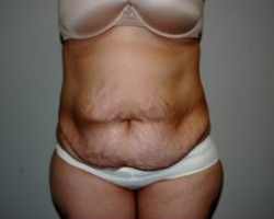Tummy Tuck Before & After Patient #204