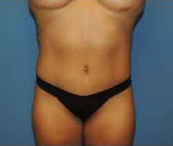 Tummy Tuck Before & After Patient #231
