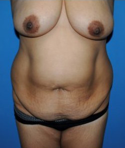 Tummy Tuck Before & After Patient #238