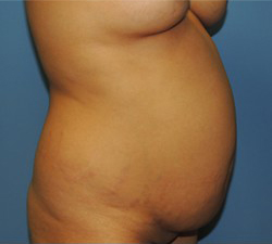 Tummy Tuck Before & After Patient #190