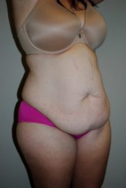 Tummy Tuck Before & After Patient #197