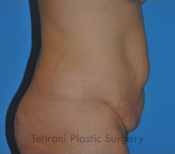 Tummy Tuck Before & After Patient #176